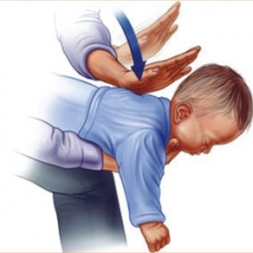 وقتی کودکی در حال خفگی است چه کار باید کرد؟